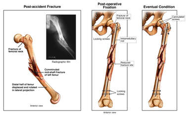 Surgical Repairs of Left Femoral Fracture