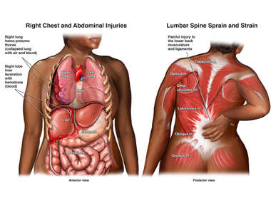 Anterior and Posterior Black Female Torso with Post-accident Injuries to the Thorax, Abdomen, Shoulder, and Back