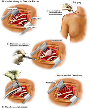 Cervical Lymphadenectomy Procedure