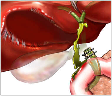 Post-operative Bile Leakage Following Removal of the Gall Bladder