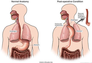 Removal of Portion of Esophagus and Stomach