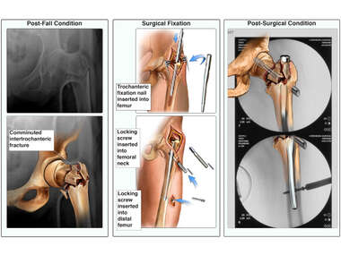 Left Hip Fracture with Surgical Fixation