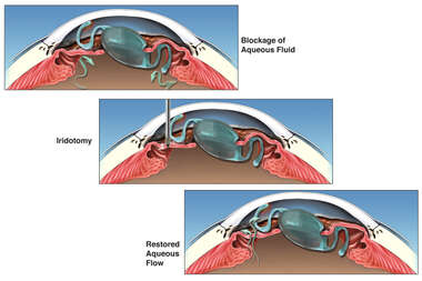 Blockage of Aqueous Fluid Flow with Iridotomy and Restored Flow