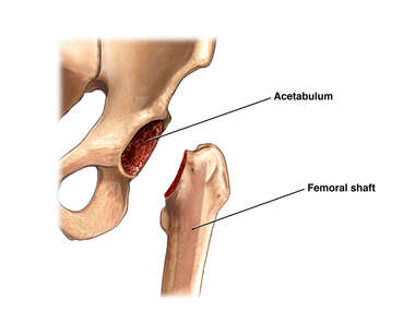 THR: Preparation of Acetabulum and Femur