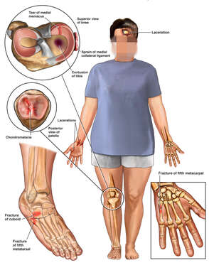 Clothed Female Figure with Post-Accident Injuries to the Scalp, Knee, Patella, Foot and Hand