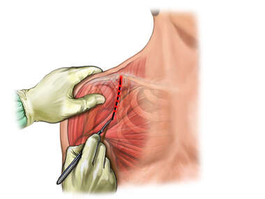 Incision Line in Shoulder