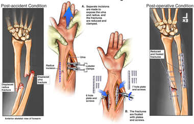Arm Fractures with Surgical Fixation
