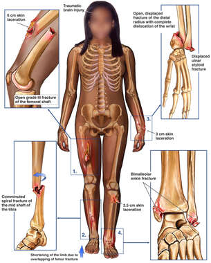 Black Female Figure with Post-accident Fractures to the Right Thigh, Lower Leg, Left Wrist and Ankle