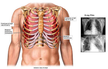 Male Torso with Post-accident Chest Injuries