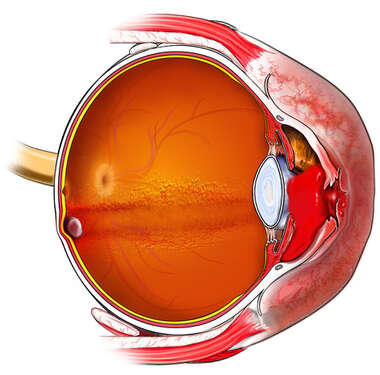 Hemorrhage in the Anterior Chamber of the Eye