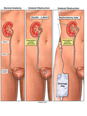 Female Urinary Tract