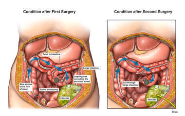 Initial Surgical Procedures