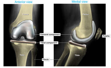 Post-operative Condition of Total Knee Replacement