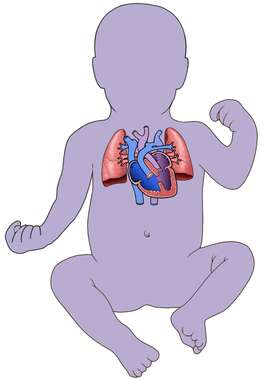Ventricular Septal Defects: Infant