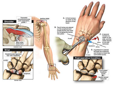 Left Wrist and Shoulder Injuries with Surgical Repair of Left Wrist