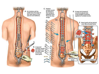 Future Dual Rod / Unit Rod Spinal Fusion Surgery From T2 to Pelvis