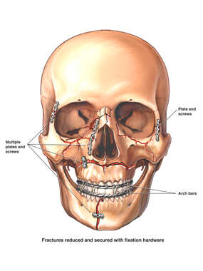 Post-operative Facial Fractures