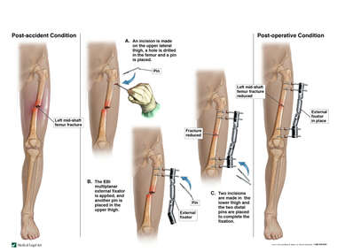 Left Femur Fracture with Application of External Fixator