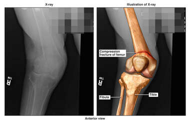 Compression Fracture of the Right Leg