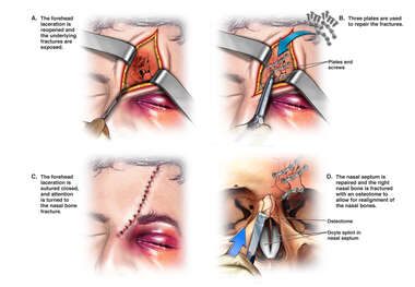 Surgical Fixation of Frontal and Nasal Fractures