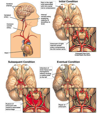 Progression of Right Internal Carotid Artery Aneurysm