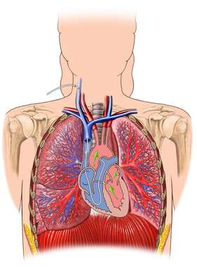 Placement of Catheter in Right Pulmonary Artery