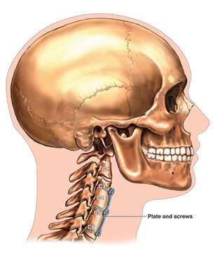 Skull with Multilevel Anterior Cervical Fusion, Plate and Screws