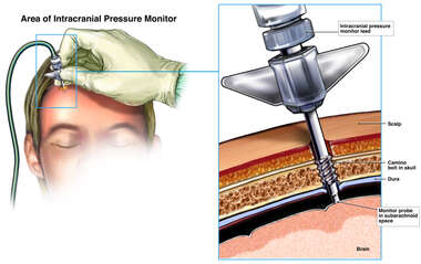 Placement of Intracranial Pressure Monitor