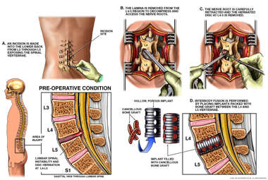 Lumbar Disc Herniation with Discectomy and Bone Fusion Surgery