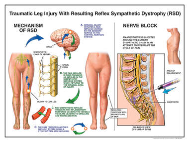 Mechanism of RSD/ Nerve Block