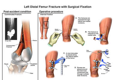 Left Distal Femur Fracture with Surgical Fixation