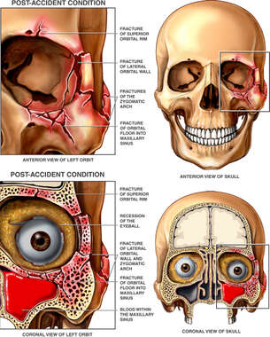 Post-accident Facial Fractures