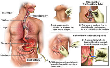 Gastrostomy and Tracheostomy Procedures
