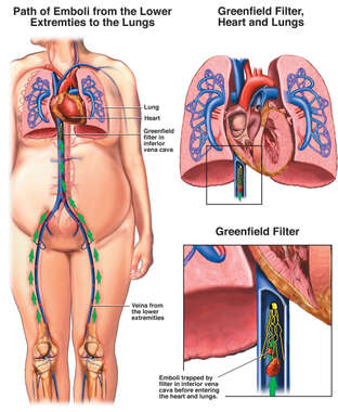 DVT and Pulmonary Embolism - Greenfield Filter Placement