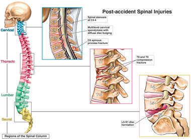 Post-Accident Cervical, Thoracic and Lumbar Spinal Injuries