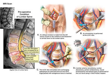 Lumbar Spine Injuries with Surgical Repairs