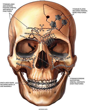 Post-operative Fixation of the Skull