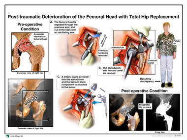 Post-traumatic Deterioration of the Femoral Head with Total Hip Replacement
