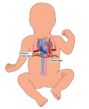 Infant Circulatory System