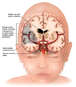 Fetal Representation and Subsequent Brain Damage
