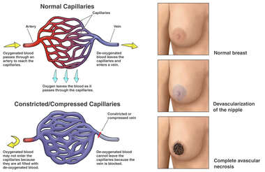 Venous Congestion with Avascular Necrosis of the Nipple