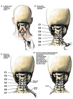 C3-C4 Posterior Cervical Laminectomies, C6-7 Laminotomy and Spinal Fusion Surgery