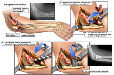 Multiple Fractures of the Elbow