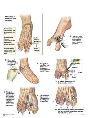 Right Foot and Ankle Repairs