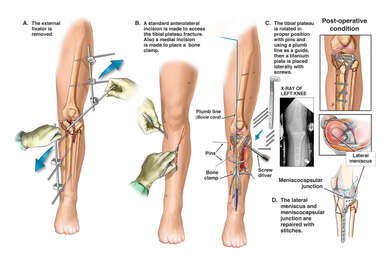 Surgical Repair of Comminuted Tibial Plateau Fracture