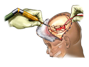Craniotomy Procedure in a Child with Skull Fractures