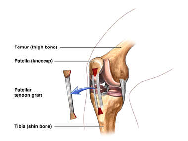 Patellar Graft Harvest