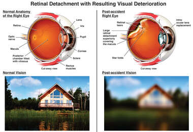 Retinal Detachment with Resulting Visual Deterioration