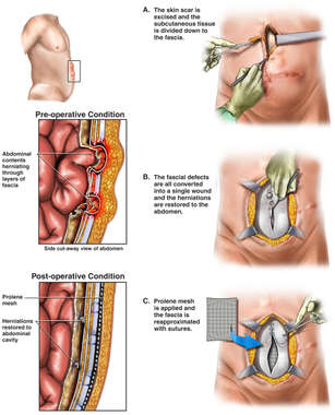 Recurrent Ventral Hernia and Surgical Repair