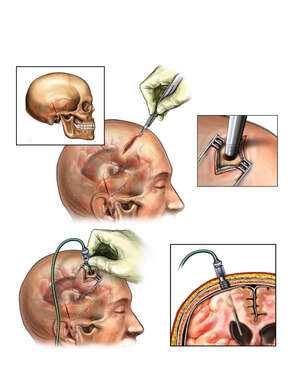 Brain Surgery - Ventriculostomy and Placement of Intracranial Pressure (ICP) Monitor Bolt
